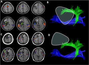 A randomized controlled trial of very early rehabilitation in speech after stroke